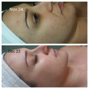 Dermalogica BioActive Peel Before & After